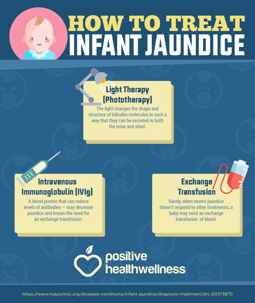 infant-jaundice