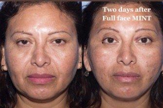 facial-threading-new