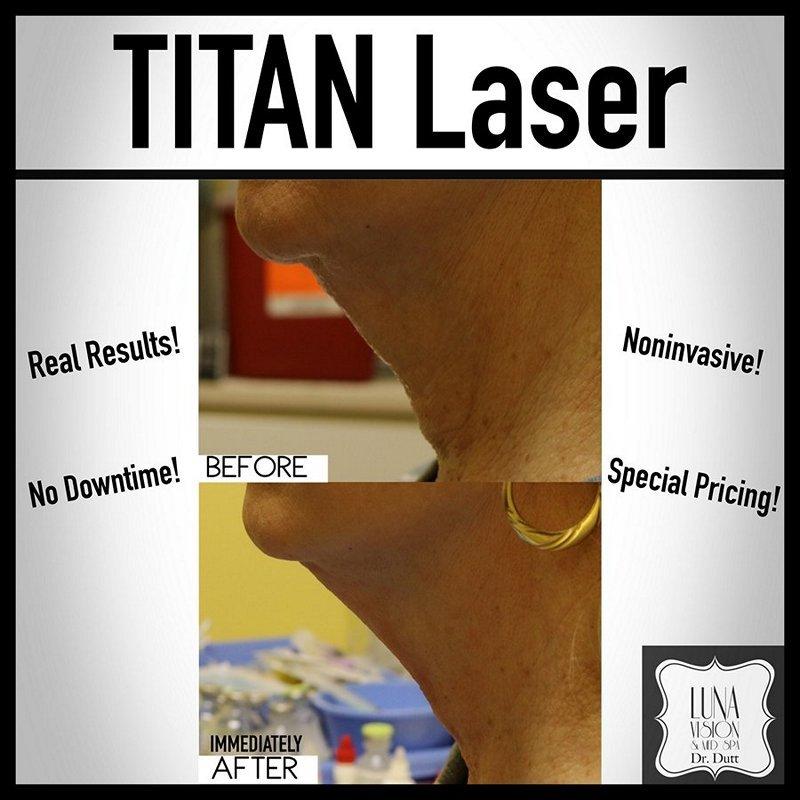 titan-laser