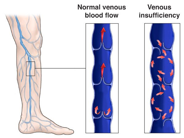 Chronic-Venous-Insufficiency.jpeg (Chronic-Venous-Insufficiency.webp)