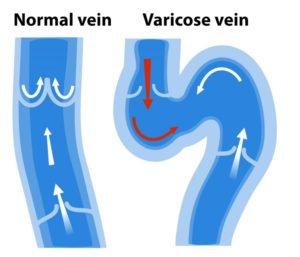 Varicose-Vein-768x658-300x257.jpeg (Varicose-Vein-768x658-300x257.webp)