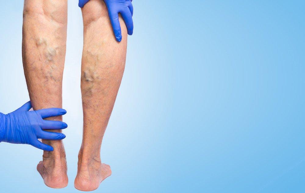 can-varicose-veins-burst-blog-article.jpeg (can-varicose-veins-burst-blog-article.webp)