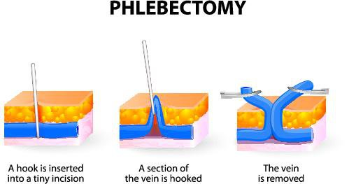 stab-phlebectomy-procedure-for-vein-removal.jpeg (stab-phlebectomy-procedure-for-vein-removal.webp)