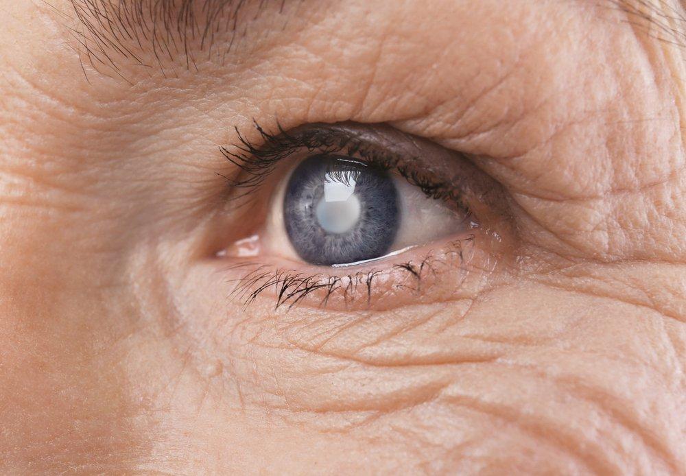 glaucoma.jpeg (image_pBJqFB6.webp)