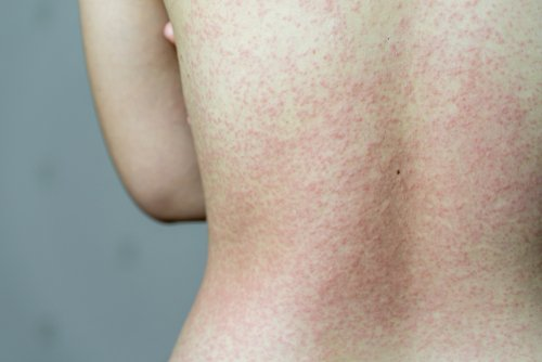 Skin Symptoms Of Covid 19 What To Look Out For Ri Skin Doc Dermatology Specialists
