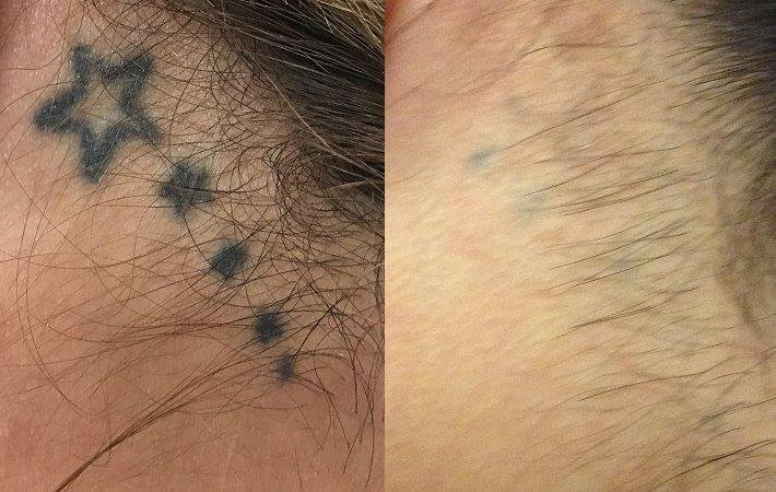 Picoway laser tattoo removal 12 treatments