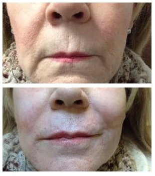 Restylane Refyne and Defyne to lower face with Dysport micro-dotting technique above lip area 1 treatment
