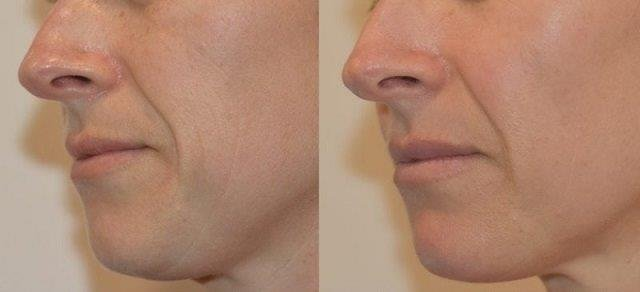 Picoway Resolve facial rejuvenation 1 treatment