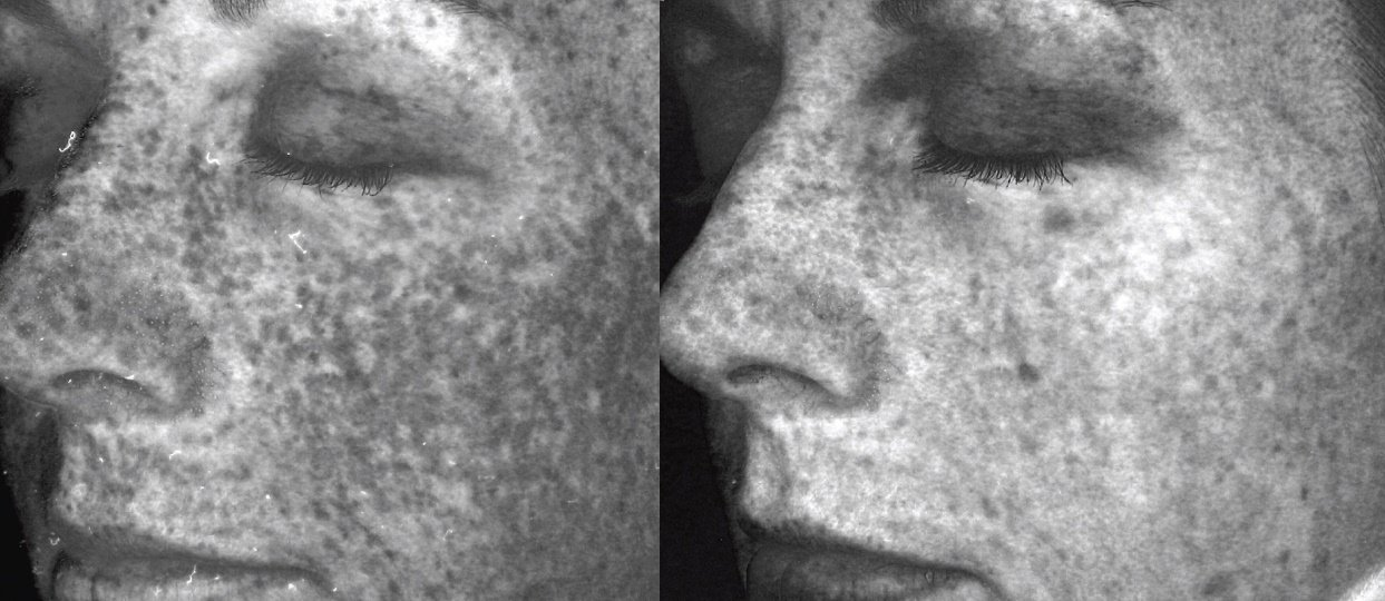 Two views of VISIA complexion results