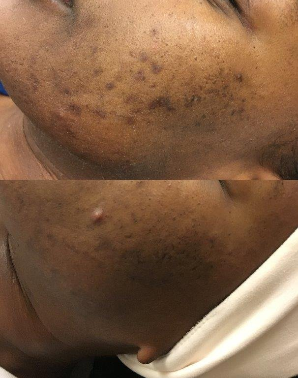 Smoothbeam 3 treatments and microneedling 1 treatment