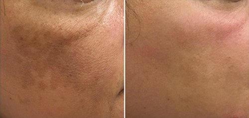 ZO Skin Health Hydroquinone System 3 months post use