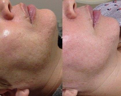 Microneedling 9 treatments