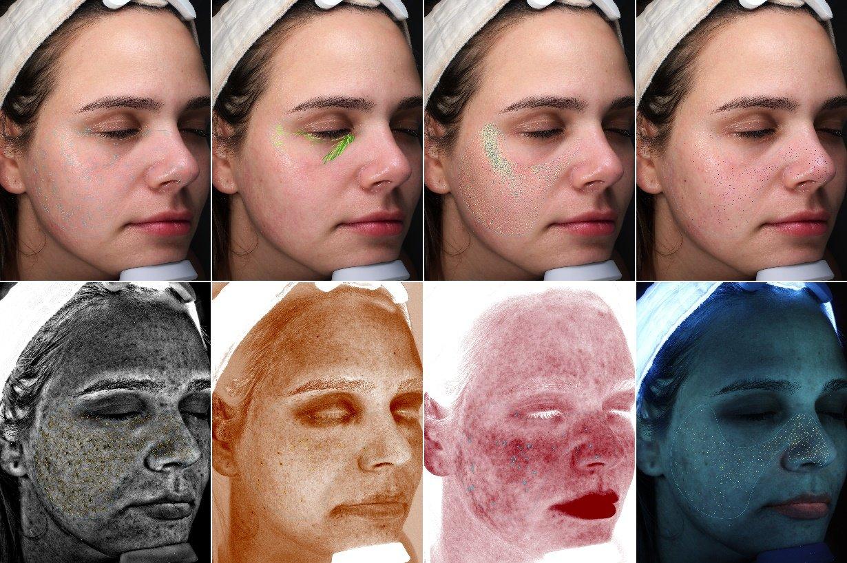 VISIA complexion analysis image comparison