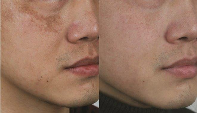 Picoway laser pigmentation 3 treatments