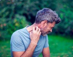 Eczema Services