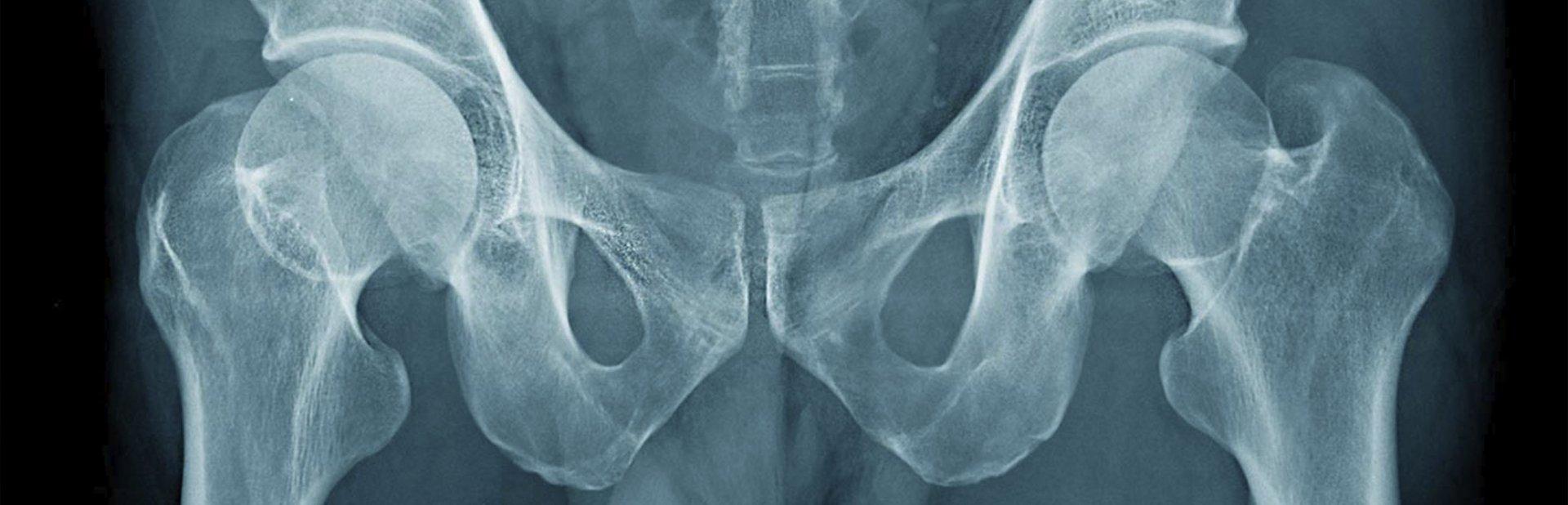 Máster en Fisioterapia de Abordaje del Suelo Pélvico en Madrid