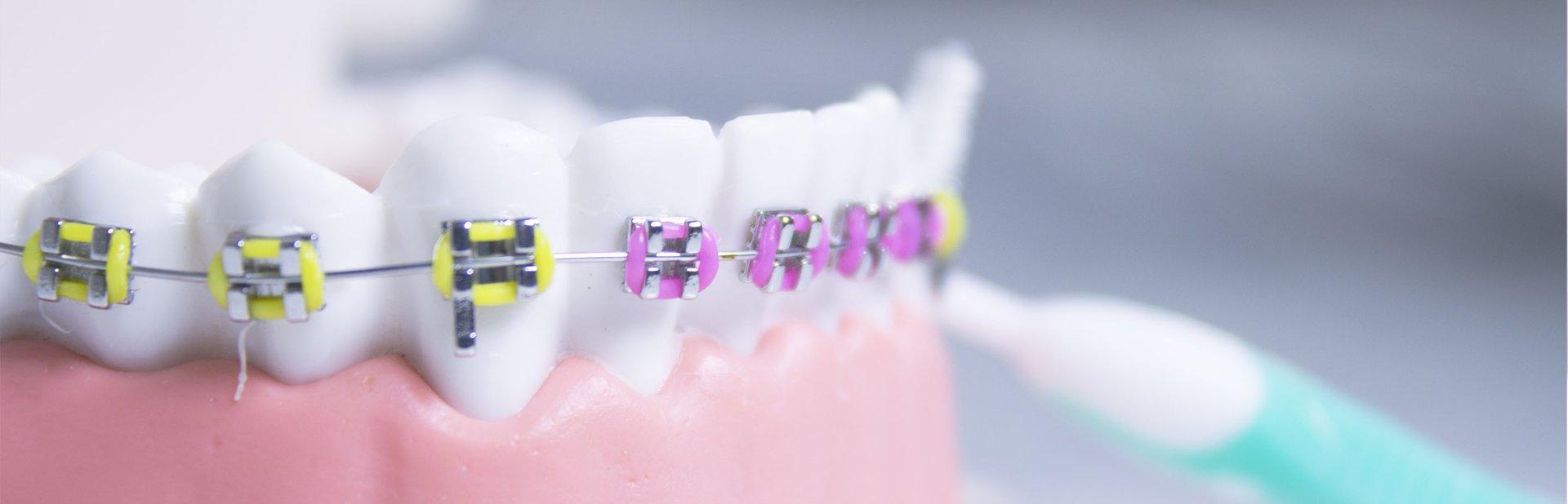 master universitario ortodoncia avanzada