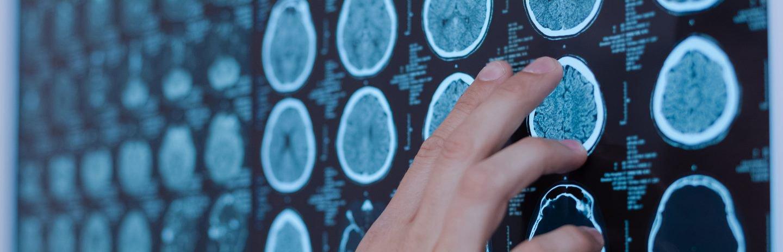 Técnico Superior Imagen para el Diagnóstico en Madrid