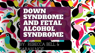 Down Syndrome And Fetal Alcohol Syndrome Presentation By Rbbell2 On