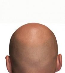 skallen