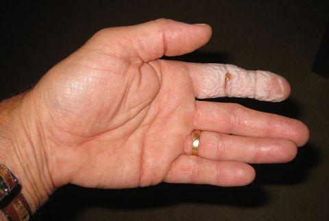 sticka i fingret inflammation