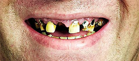 min tand är lös
