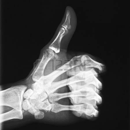 36240258-röntgen-av-tummen-upp