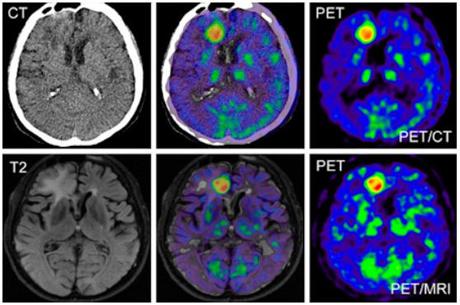 Hjärntumör-PET-MR