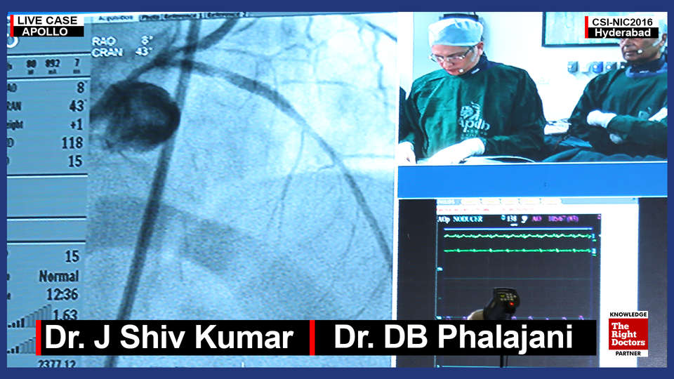 Dr. Shiv kumar, Interventional Cardiologist, Apollo Hospital Secunderabad