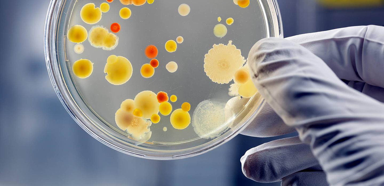 Microbios avanzados