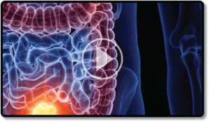 Video colon cleansing