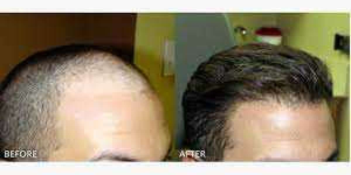 FUE: The best solution to hair loss