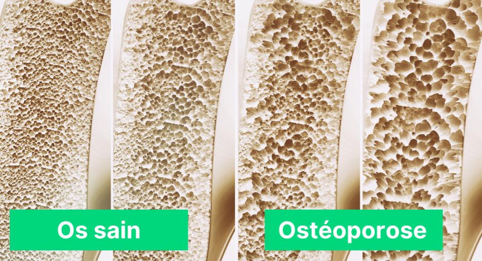 ostéoporose représentation d'un os malade