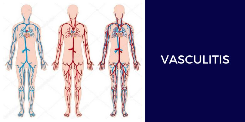 Vasculitis y cámara hiperbárica