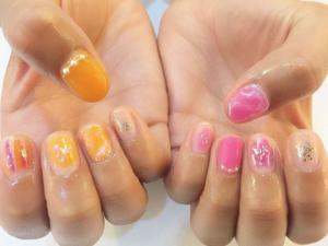 nail-asymmetry