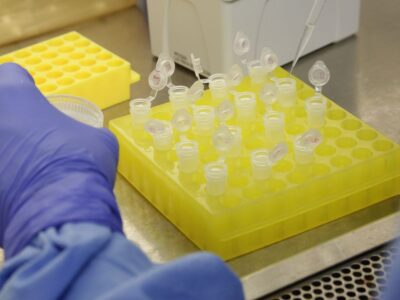 Coronavírus: Johnson & Johnson iniciará testes da vacina em julho