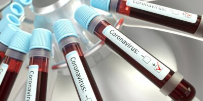 Coronavírus: Novavax inicia testes de vacina na África do Sul
