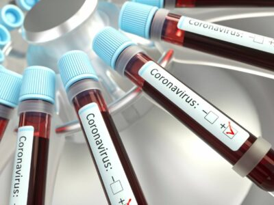 Coronavírus: farmacêutica entra em fase final de testes para anticorpos