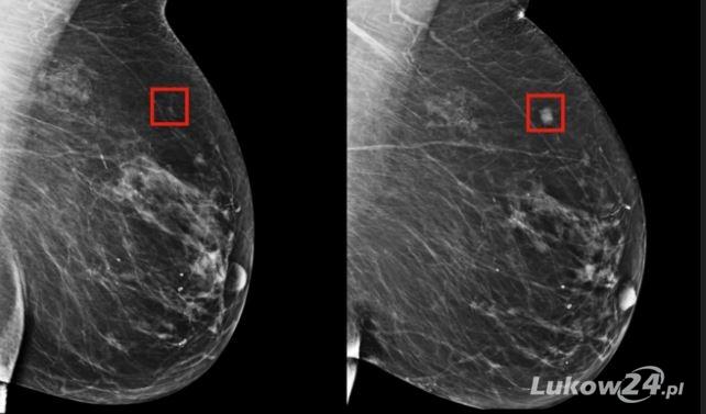 Badania mammograficzne przy Kauflandzie  - Zdjęcie główne