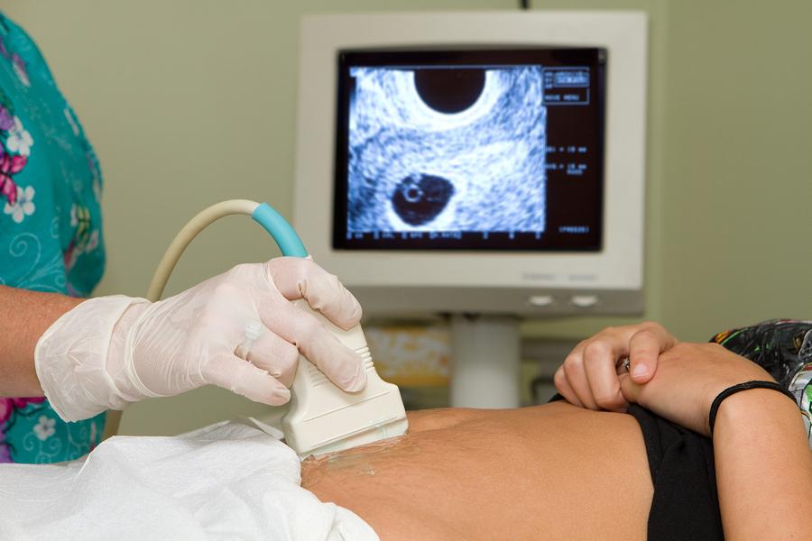 Een tweede zwangerschap, toch niet zo natuurlijk?