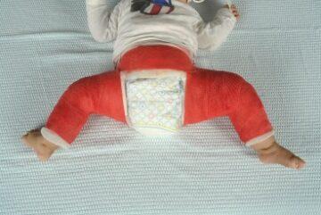 Baby die een gipsbroek draagt in verband met heupdysplasie