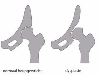 tekening van een normaal heupgewricht en een gewricht met heupdysplasie