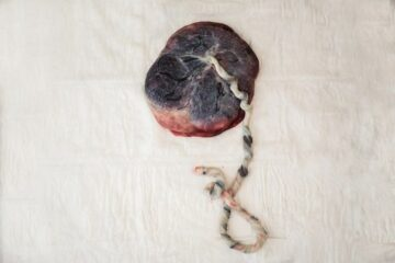 Placenta vlak na de geboorte