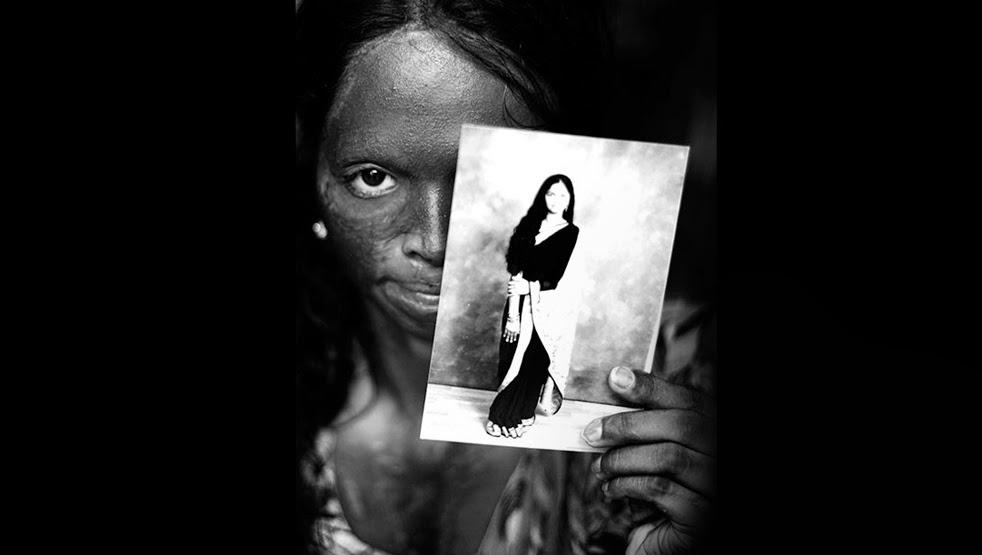 Laxmi, Face of the Campaign, Photographer Ravi Choudhury