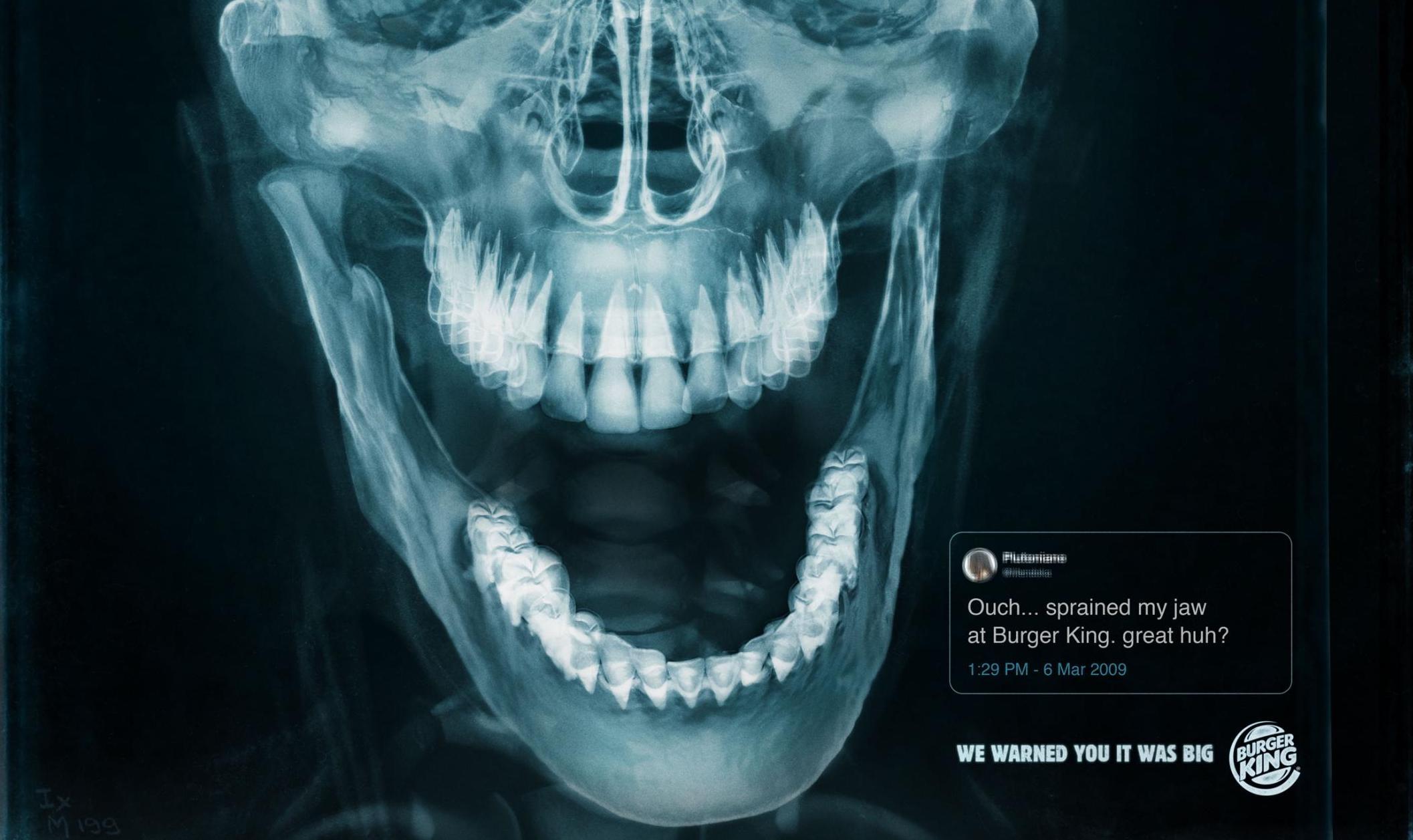 Este nuevo anuncio de Burger King consiste en 3 radiografías de personas que se lastimaron la mandíbula por morder una hamburguesa.