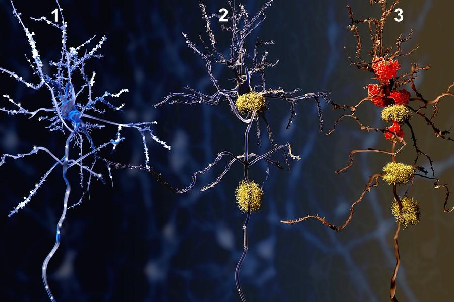 Alzheimer-Virus-Bacterias