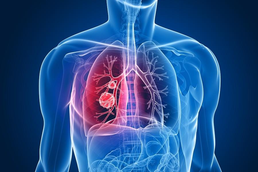 Cancer-Pulmon-Recaidas