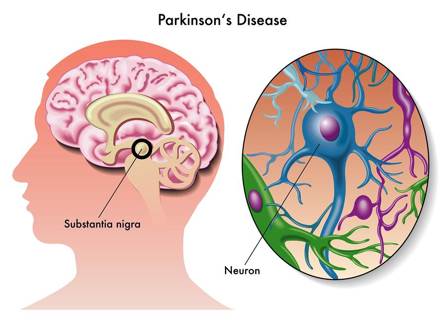 Enfermedad-Parkinson-Neuronas