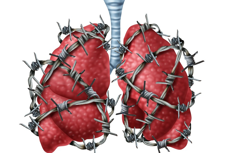 Fibrosis-Pulmonar-Idiopatica-Causas