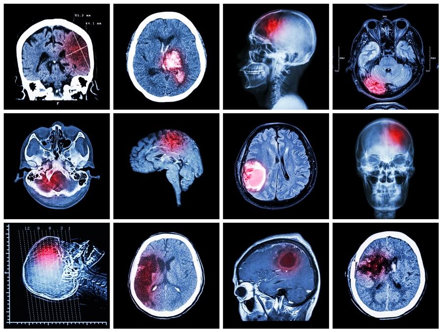 Paralisis-Cerebral